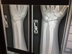 x-ray-1273382_640